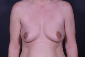 Before Photo - Breast Augmentation - Case #13000 - Breast Augmentation with Shaped Silicone Implants - Frontal View