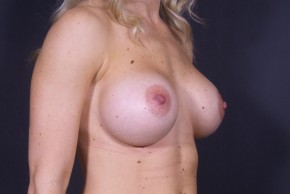 After Photo - Breast Augmentation - Case #13001 - Breast Augmentation with Round Silicone Implants - Oblique View
