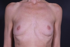 After Photo - Breast Revision - Case #13002 - Implant Removal - Frontal View