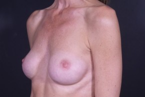 Before Photo - Breast Revision - Case #13002 - Implant Removal - Oblique View