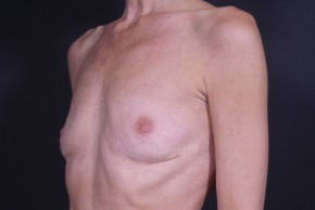 After Photo - Breast Revision - Case #13002 - Implant Removal - Oblique View