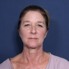 Before Photo - Facelift - Case #13003 - 58 Years Old Female - Frontal View
