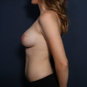 After Photo - Breast Augmentation - Case #13004 - 25 Years Old Female  - Lateral View