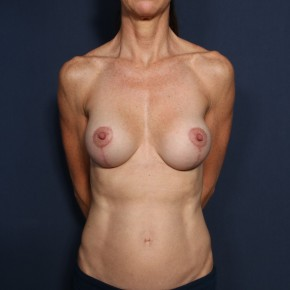 After Photo - Breast Lift - Case #13161 - 49 Years Old Female - Frontal View