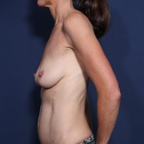 Before Photo - Breast Lift - Case #13161 - 49 Years Old Female - Lateral View
