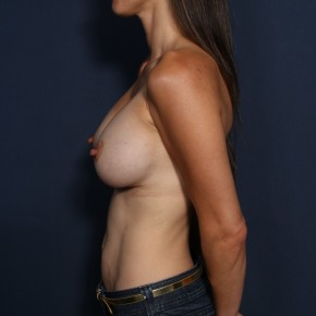 After Photo - Breast Augmentation - Case #13163 - 36 Years Old Female - Lateral View