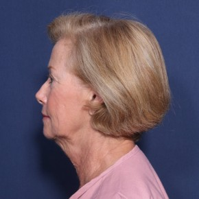 Before Photo - Facelift - Case #13164 - 69 Year Old Female - Lateral View