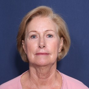Before Photo - Facelift - Case #13171 - 69 Year Old Female - Frontal View