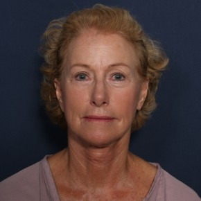 After Photo - Facelift - Case #13171 - 69 Year Old Female - Frontal View