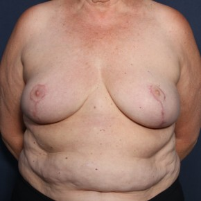 After Photo - Breast Lift - Case #13172 - 66 Years Old Female  - Frontal View