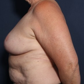 After Photo - Breast Lift - Case #13172 - 66 Years Old Female  - Lateral View