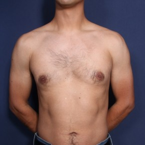 Before Photo - Gynecomastia - Case #13173 - 30 Years Old Male  - Frontal View