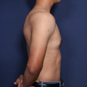 Before Photo - Gynecomastia - Case #13173 - 30 Years Old Male  - Lateral View