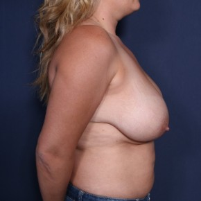 Before Photo - Breast Lift - Case #13175 - 35 Years Old Female  - Lateral View