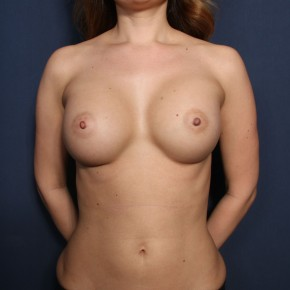 After Photo - Breast Augmentation - Case #13176 - 39 Years Old Female - Frontal View