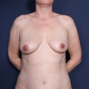 Before Photo - Breast Augmentation - Case #13179 - 43 Years Old Female - Frontal View
