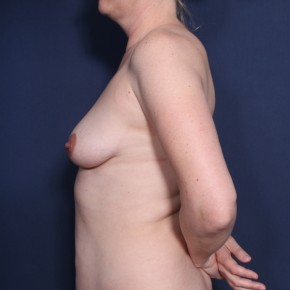 Before Photo - Breast Augmentation - Case #13179 - 43 Years Old Female - Lateral View