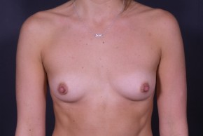 Before Photo - Breast Augmentation - Case #13184 - Breast Augmentation with Round Silicone Implants - Frontal View