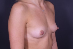 Before Photo - Breast Augmentation - Case #13184 - Breast Augmentation with Round Silicone Implants - Oblique View