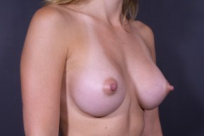 After Photo - Breast Augmentation - Case #13184 - Breast Augmentation with Round Silicone Implants - Oblique View
