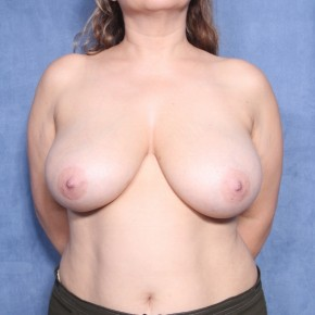 Before Photo - Breast Reduction - Case #13195 - 51 Years Old Female  - Frontal View