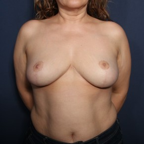 After Photo - Breast Reduction - Case #13195 - 51 Years Old Female  - Frontal View
