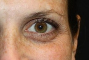 Before Photo - Botulinum Toxin - Case #13201 - Botox (Crows Feet Only) - 34 year old female. - Frontal View