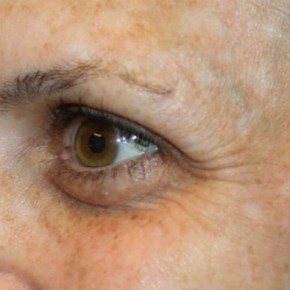 Before Photo - Botulinum Toxin - Case #13201 - Botox (Crows Feet Only) - 34 year old female. - Oblique View