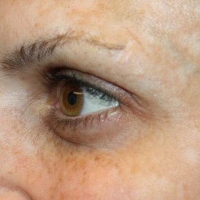 After Photo - Botulinum Toxin - Case #13201 - Botox (Crows Feet Only) - 34 year old female. - Oblique View