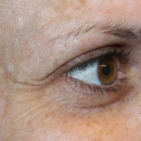 Before Photo - Botulinum Toxin - Case #13201 - Botox (Crows Feet Only) - 34 year old female. - Lateral View