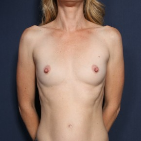Before Photo - Breast Augmentation - Case #13210 - 38 Years Old Female - Frontal View