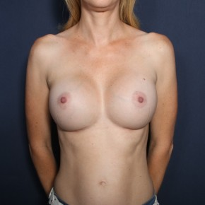 After Photo - Breast Augmentation - Case #13210 - 38 Years Old Female - Frontal View