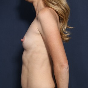 Before Photo - Breast Augmentation - Case #13210 - 38 Years Old Female - Lateral View