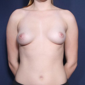 Before Photo - Breast Augmentation - Case #13214 - 19 Year Old Female - Frontal View