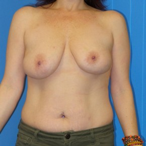 Before Photo - Breast Lift - Case #13215 - Bilateral Mastopexy - Frontal View