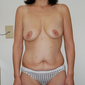 Before Photo - Plastic Surgery After Dramatic Weight Loss - Case #13206 - Body Lift and Breast Augmentation - Frontal View
