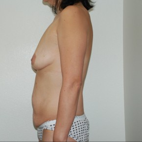 Before Photo - Plastic Surgery After Dramatic Weight Loss - Case #13206 - Body Lift and Breast Augmentation - Lateral View