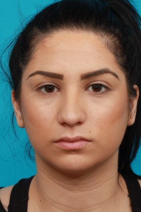 Before Photo - Nose Surgery - Case #13242 - Rhinoplasty with Chin Augmentation - Frontal View