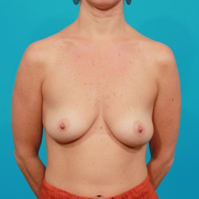 Before Photo - Breast Augmentation - Case #13244 - Silicone Breast Augmentation - Frontal View