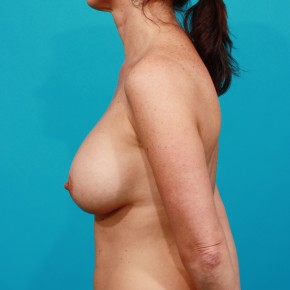 After Photo - Breast Augmentation - Case #13244 - Silicone Breast Augmentation - Lateral View