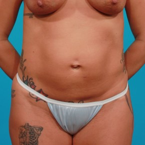 Before Photo - Tummy Tuck - Case #13245 - Athletic Tummy Tuck - Frontal View