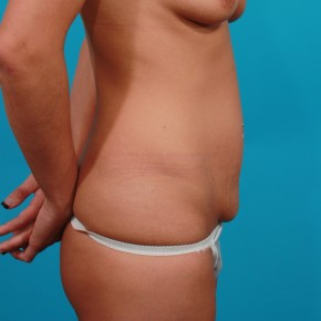 Before Photo - Tummy Tuck - Case #13246 - Tummy Tuck after c-section - Lateral View
