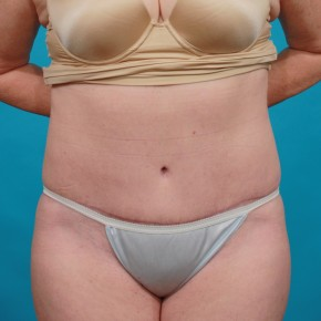 After Photo - Tummy Tuck - Case #13247 - Abdominoplasty with Flank Lipo - Frontal View