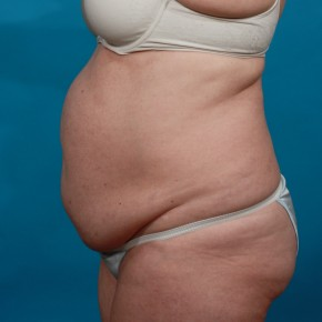 Before Photo - Tummy Tuck - Case #13247 - Abdominoplasty with Flank Lipo - Lateral View