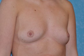 Before Photo - Breast Augmentation - Case #13250 - Breast Augmentation Before and After - Oblique View