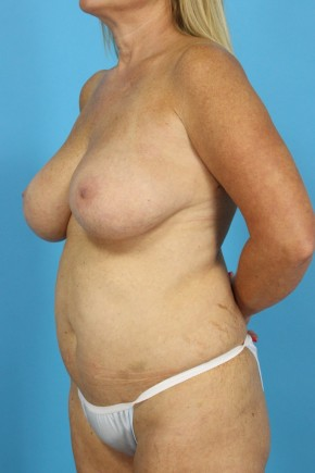 Before Photo - Mommy Makeover - Case #13253 - Revision Mommy Makeover - Oblique View