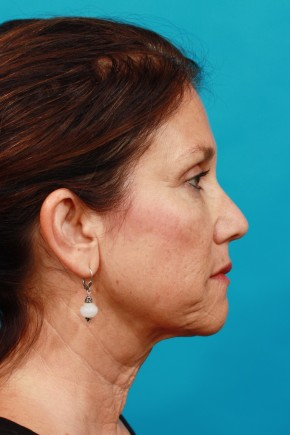 Before Photo - Neck Lift - Case #13261 - Lateral View