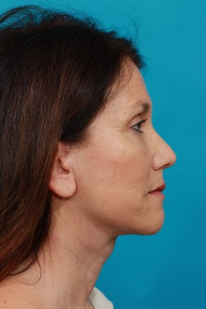 After Photo - Neck Lift - Case #13261 - Lateral View