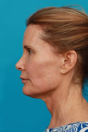 Before Photo - Facial Rejuvenation - Case #13262 - Secondary Face / Neck Lift - Lateral View