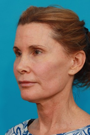 Before Photo - Facial Rejuvenation - Case #13262 - Secondary Face / Neck Lift - Oblique View